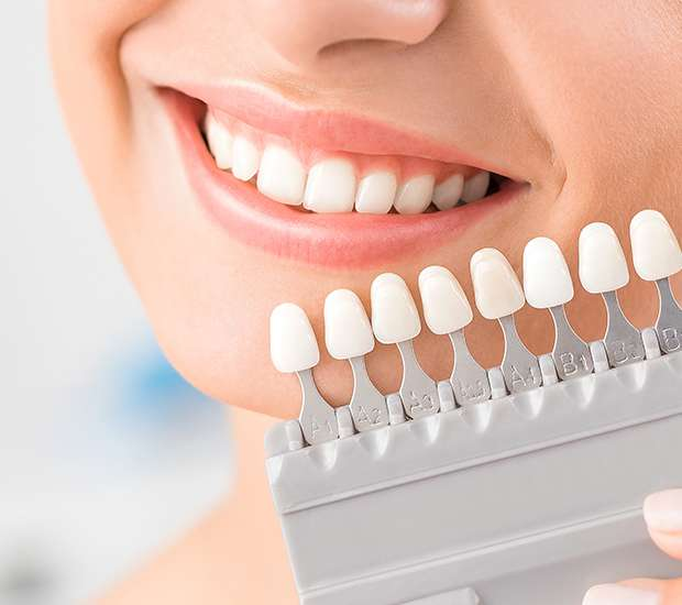 Marietta Dental Veneers and Dental Laminates